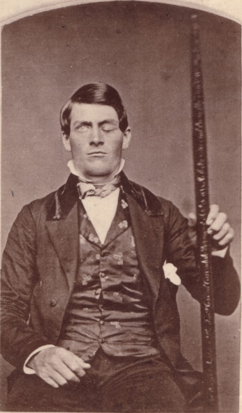 phineasgage