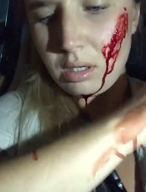 18099892-7430613-Mia_known_as_Mythical_Mia_was_left_covered_in_blood_on_her_face_-m-7_1567686761207.jpg