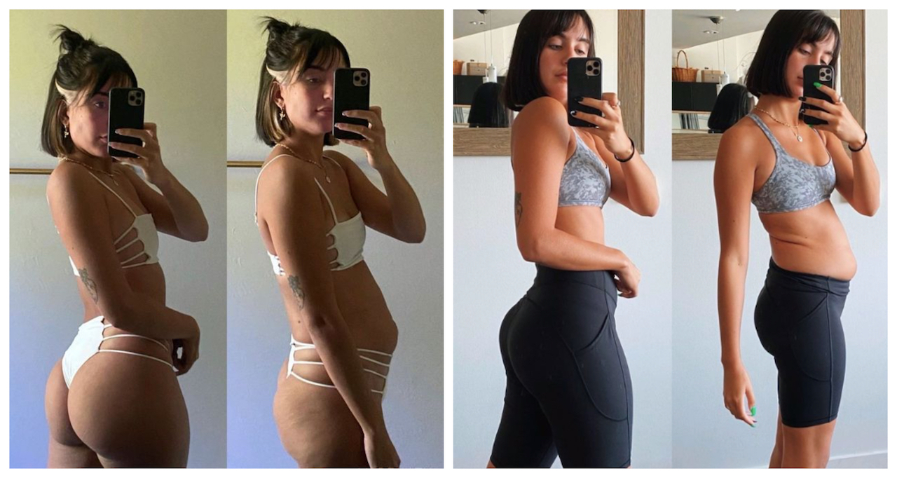 Előtte-utána fotón mutatja be egy amerikai Instagram-modell, hogy a szépség csak egy jó szög kérdése
